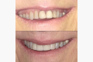 dental before after pictures
