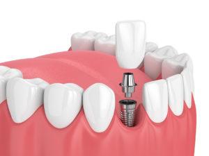 plantation dental implants