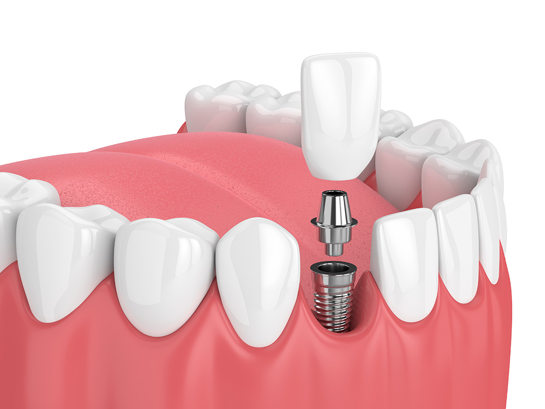 plantation dental implants